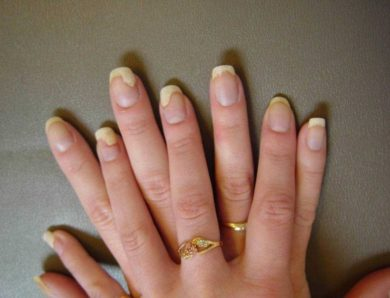 Причины возникновения грибка ногтей на руках