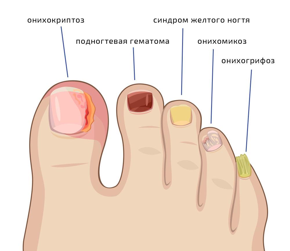 Лечение грибка ногтей в домашних условиях